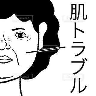 肌トラブルの写真・画像素材[2585613]