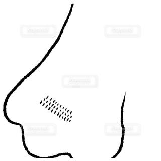 いちご鼻の写真・画像素材[2741695]