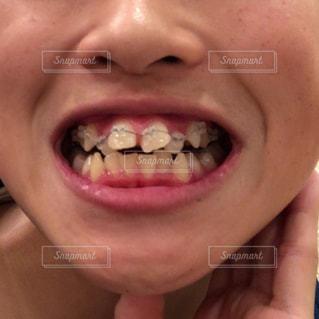 近くに彼女の歯を磨く女性のアップの写真・画像素材[1602092]
