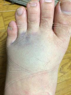 怪我の写真・画像素材[410698]