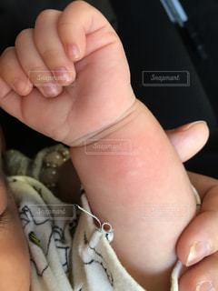 赤ちゃんのじんましんの写真・画像素材[2237179]