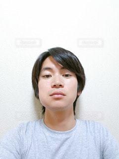 抜歯で顔が腫れてる人の写真・画像素材[2133583]