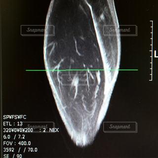 肉離れ MRIの写真・画像素材[1275379]