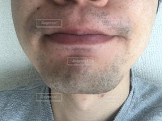 髭脱毛の写真・画像素材[2869033]