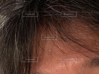 白髪 男性 額の写真・画像素材[1625359]
