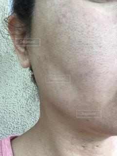 肌が汚いの写真・画像素材[1859553]