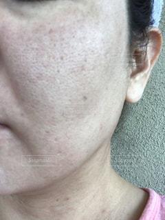 肌が汚いの写真・画像素材[1859554]