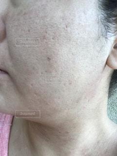 肌が汚いの写真・画像素材[1859555]