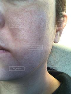 肌が汚いの写真・画像素材[2013202]
