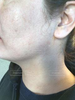 肌が汚いの写真・画像素材[2013203]