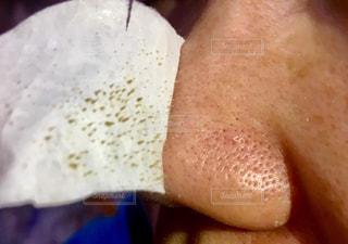 鼻パックの写真・画像素材[2728785]