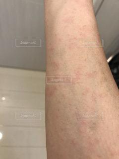 休日に謎の湿疹の写真・画像素材[2095138]