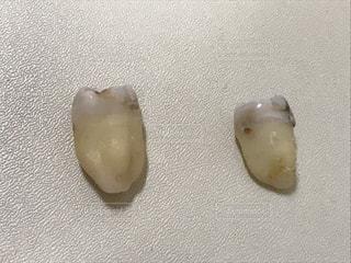 No.649780 歯