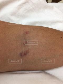 腕の血管にのこる注射痕の写真・画像素材[1886129]
