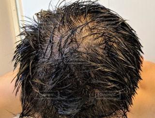 若ハゲ男のハゲ頭クローズアップの写真・画像素材[2495900]