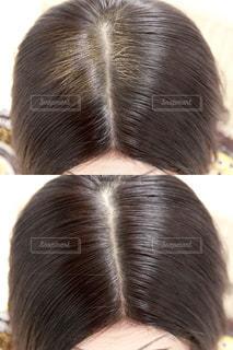 女性のヘアケア白髪ビフォーアフターの写真・画像素材[1118168]