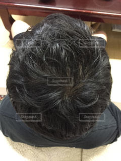 AGA治療後の毛量の写真・画像素材[804565]