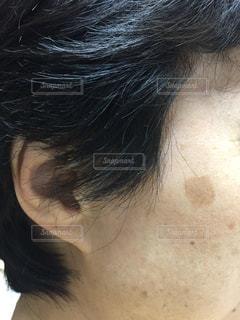 69歳の肌の頑固なシミの写真・画像素材[1469216]