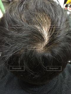 ハゲが進行。頭皮の薄毛に悩む男性の写真・画像素材[1816670]