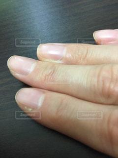 手入れの行き届かない、さかむけの指の写真・画像素材[1816977]