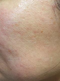アラフォー女性の肌荒れの写真・画像素材[2105382]