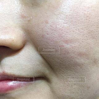 アラフォー女性の肌の悩みの写真・画像素材[2105384]