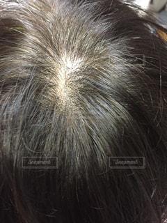 女性の薄毛と白髪の写真・画像素材[2511071]