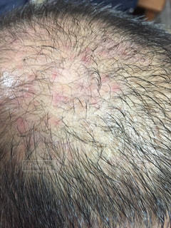 薄毛の頭に湿疹の写真・画像素材[2772351]