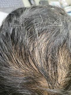 薄くなった頭に悩むの写真・画像素材[3582820]