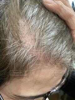 シニア女性の髪の毛の分け目の写真・画像素材[4293857]