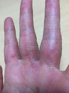 痛痒い手の写真・画像素材[1073566]