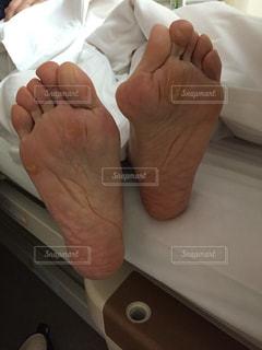 外反母趾の手術の写真・画像素材[963603]
