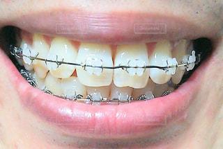 歯列矯正したオヤジの写真・画像素材[3150999]