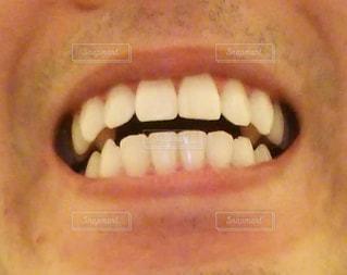 歯並び綺麗なオヤジの写真・画像素材[3151014]