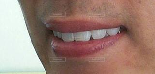 歯並び綺麗の写真・画像素材[3151020]