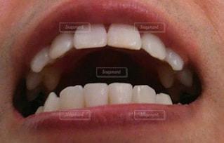 歯並び綺麗の写真・画像素材[3151021]