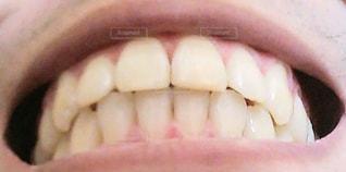 歯並び綺麗の写真・画像素材[3151047]