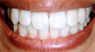 綺麗な歯並びの写真・画像素材[3211110]