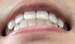 歯並びの写真・画像素材[3221003]