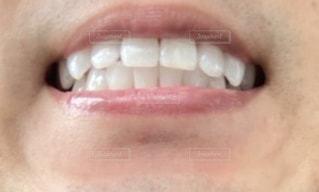 歯のクローズアップの写真・画像素材[3221005]