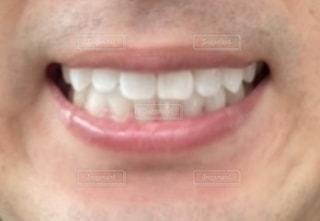 歯並びの写真・画像素材[3221024]