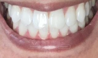 綺麗な歯並びの写真・画像素材[3282343]