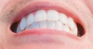 綺麗な歯並びの写真・画像素材[3330260]