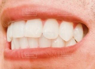 歯列矯正した男性の写真・画像素材[3343129]