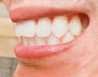 歯列矯正したアラフォーオヤジの写真・画像素材[3343132]