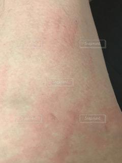 蕁麻疹の写真・画像素材[1191180]
