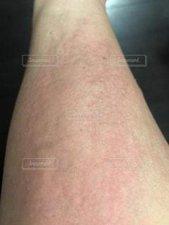 蕁麻疹の写真・画像素材[1191186]
