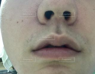 毛穴、肌のアップ写真の写真・画像素材[1074896]