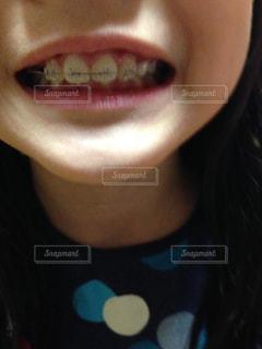 小学生で歯列矯正はよくある時代の写真・画像素材[765810]