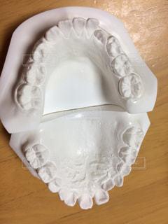 歯の矯正歯型の写真・画像素材[780816]